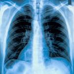 tüdő ultrahang