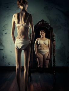 hogyan lehet fogyni, ha anorexiás vagy